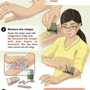Bee Sting First Aid